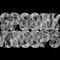 Thumb__spoonk-1417366674