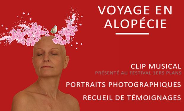 Image du projet Voyage en Alopécie