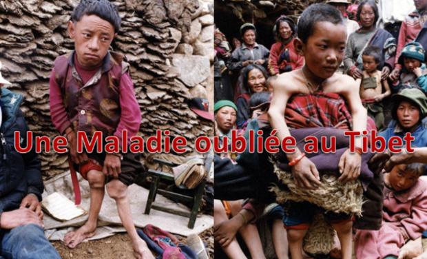 Project visual Une maladie oubliée au Tibet