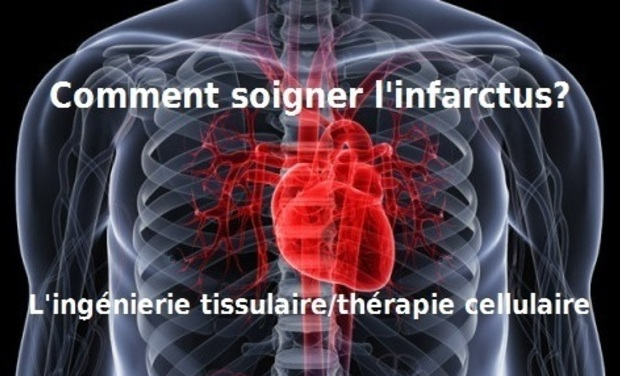 Visuel du projet Ingénierie tissulaire : soigner l'infarctus