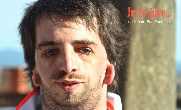 """Visueel van project Film : """"Je te jure..."""", & la maladie de Franceschetti."""