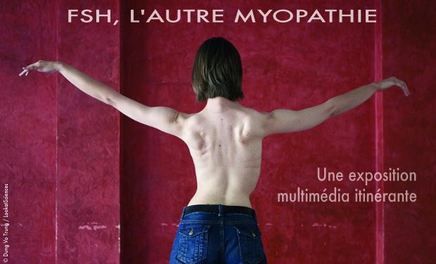 Project visual FSH, l'autre myopathie - Une exposition multimédia itinérante