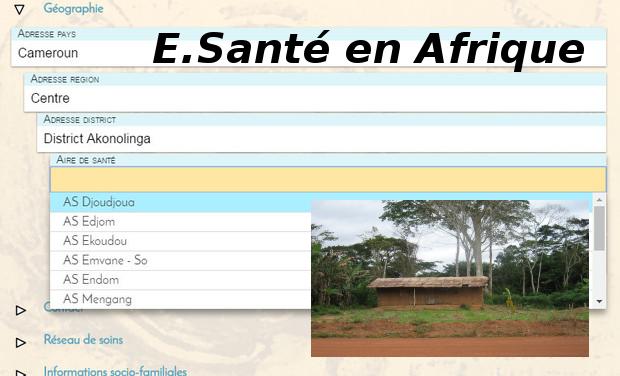 Project visual E-santé en Afrique