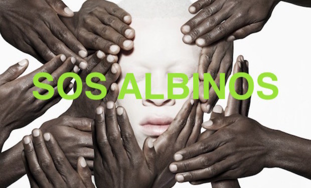 Project visual SOS ALBINOS