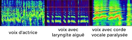 Voix-1410339173