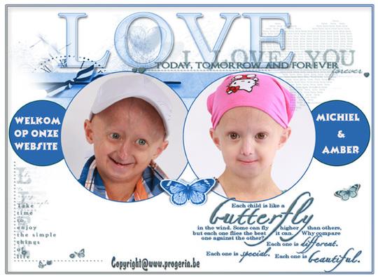 Progeria-1416488728