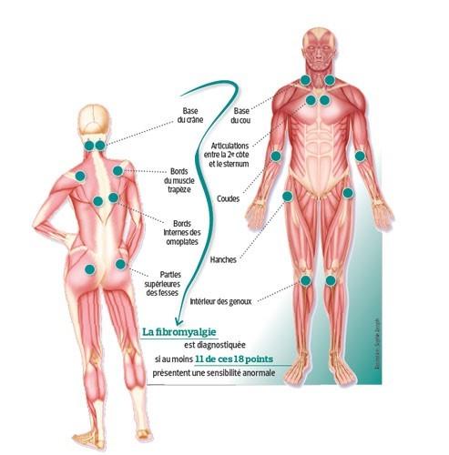 Les-18-points-de-la-fibromyalgie-1431975328